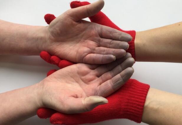 gloves for raynaud's phenomenon